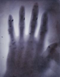 X-ray photograph of lead shot in hand
